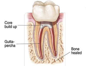 afterrootcanal